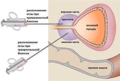 Биопсия предстательной железы, как проводится, возможные осложнения