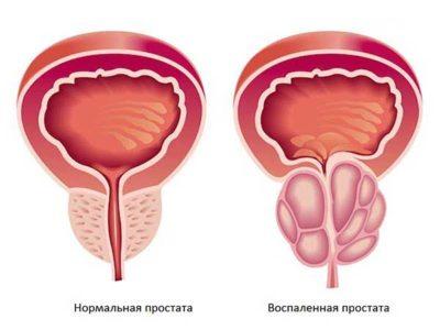 Болезни мочеполовой системы у мужчин