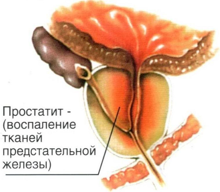 После операции тур простаты моча с кровью