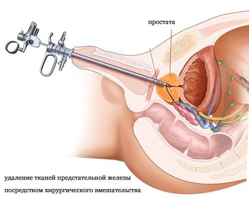 Лечение отсутствия предстательной железы