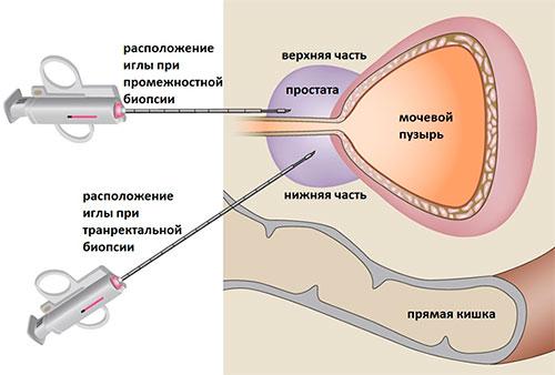 Анализ секрета простаты лейкоциты