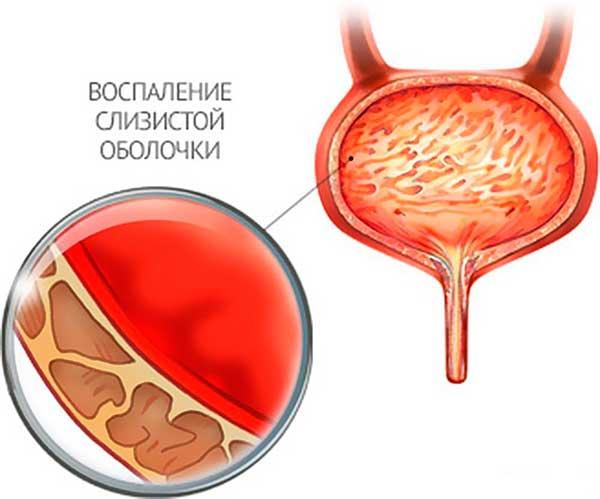 какие лекарства принимать от глистов и паразитов