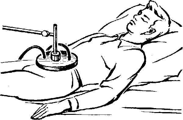 Расстройства поджелудочной железы