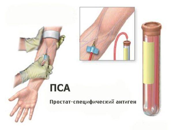Семена тыквы лечение простатита отзывы